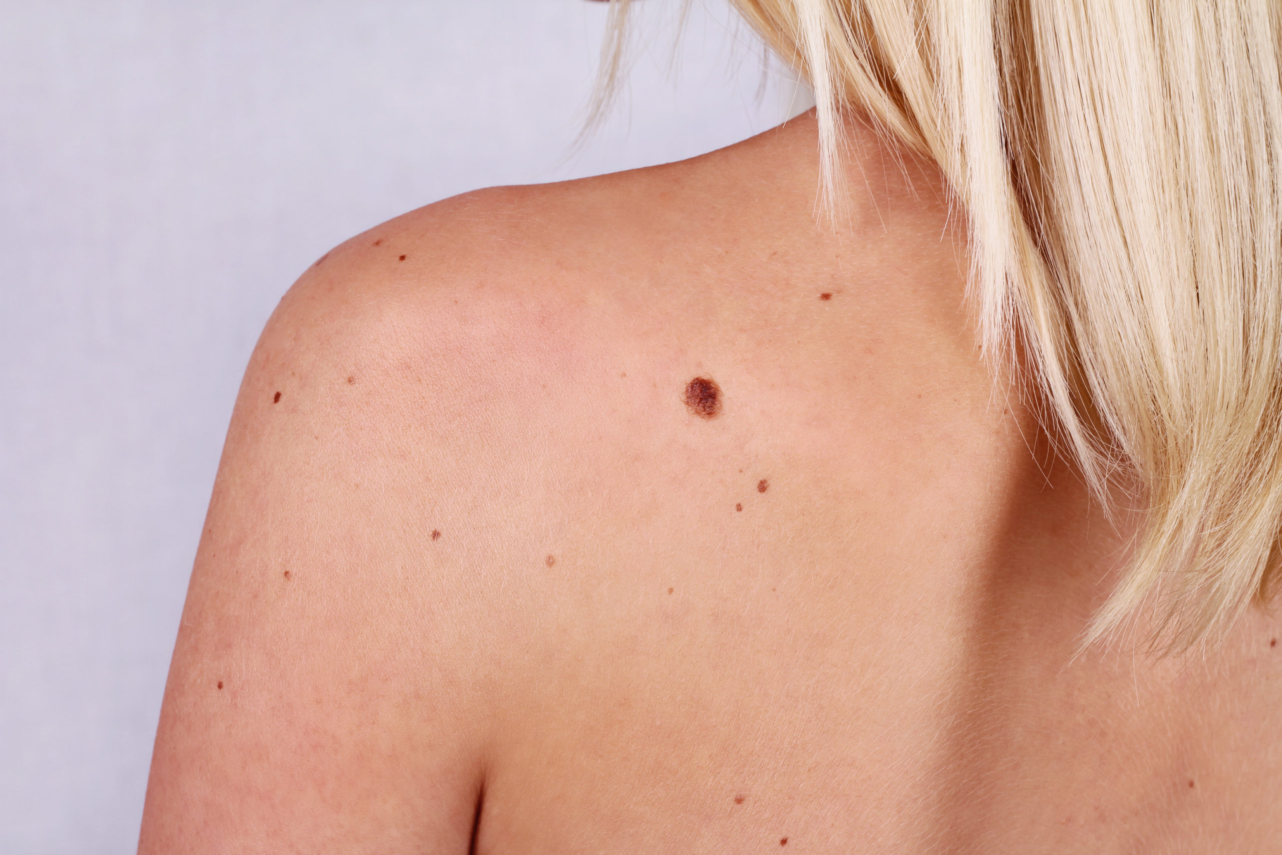 apple cider vinegar on skin tags