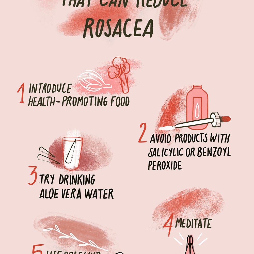 best natural treatment for rosacea.