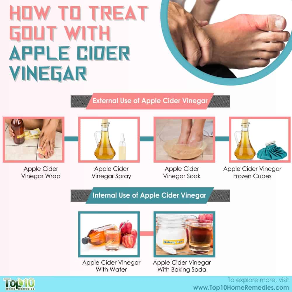 apple cider vinegar and baking soda for gout