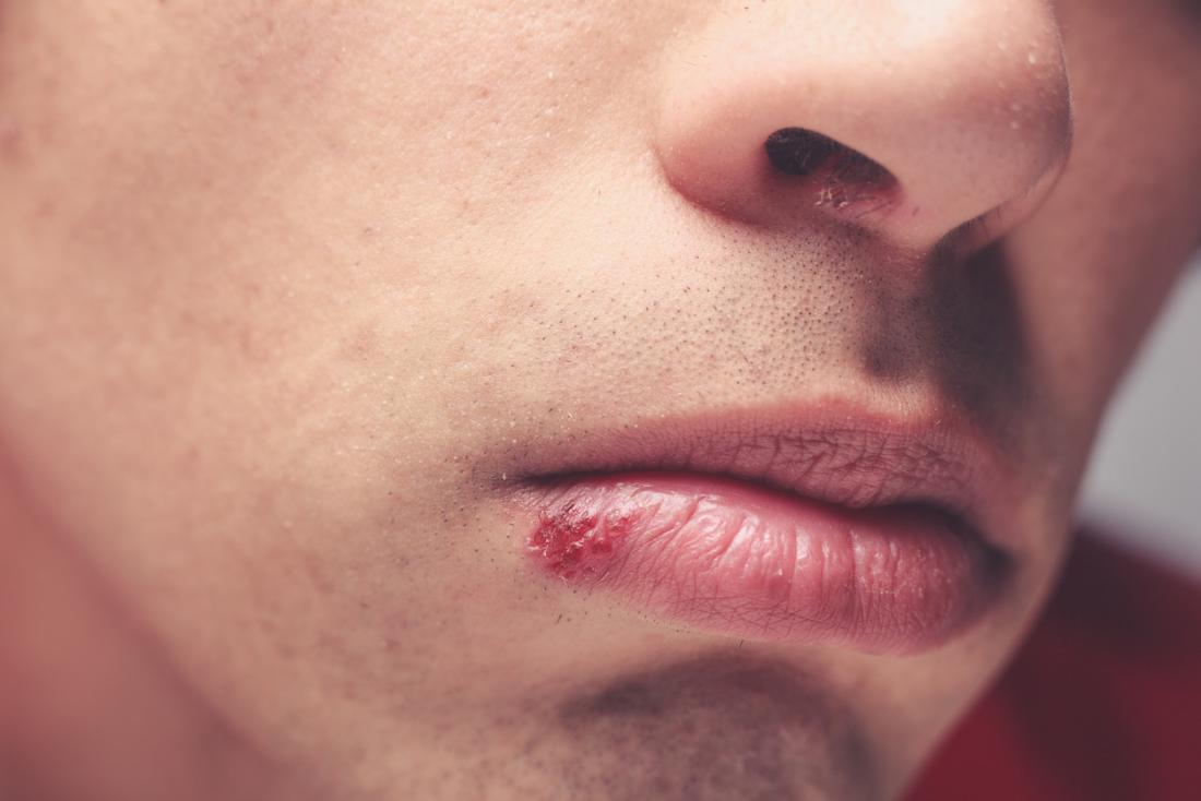 peppermint oil for cold sore