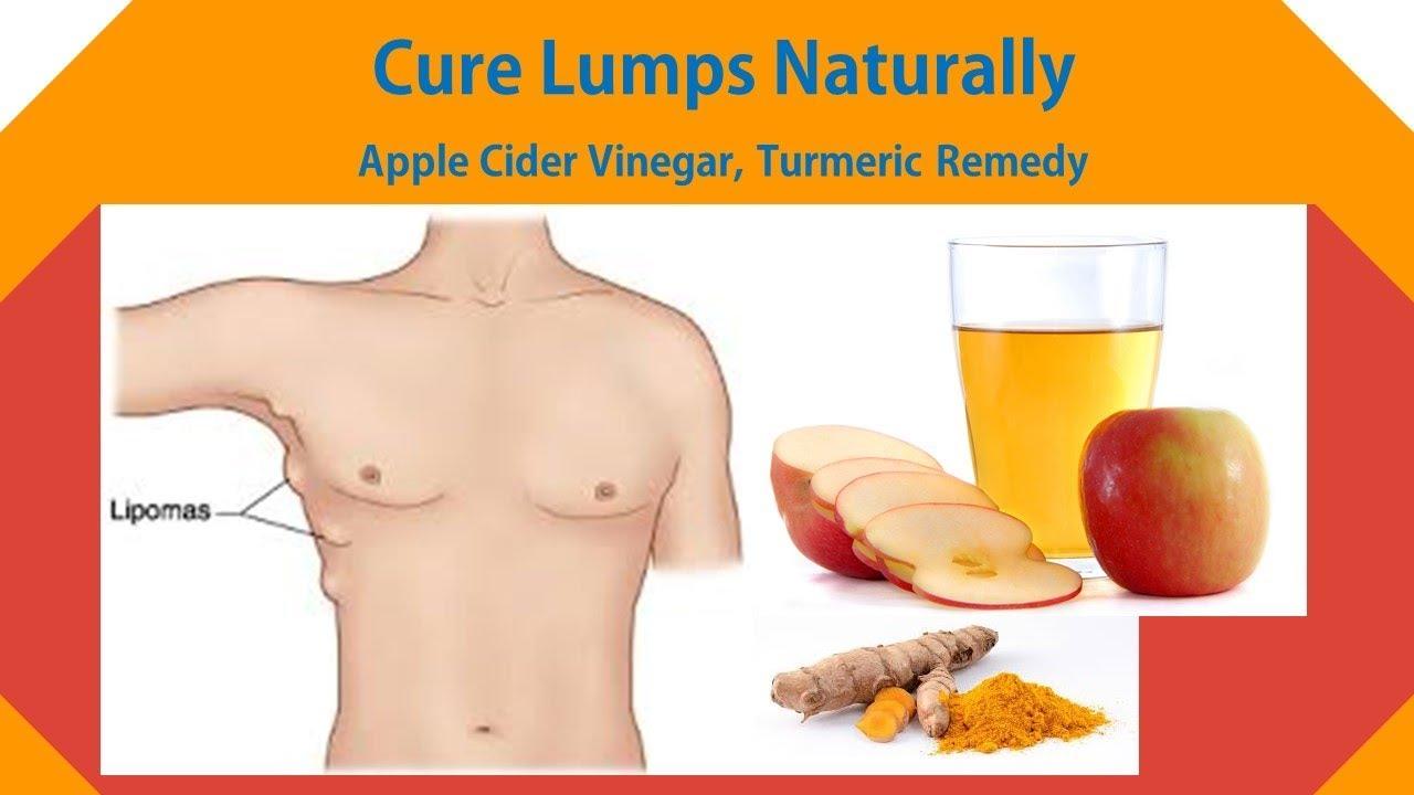 apple cider vinegar lipoma turmeric and chickweed salve