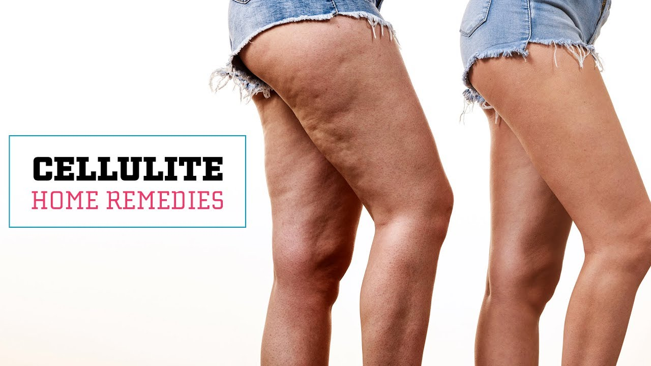 apple cider vinegar and cellulite define cellulite