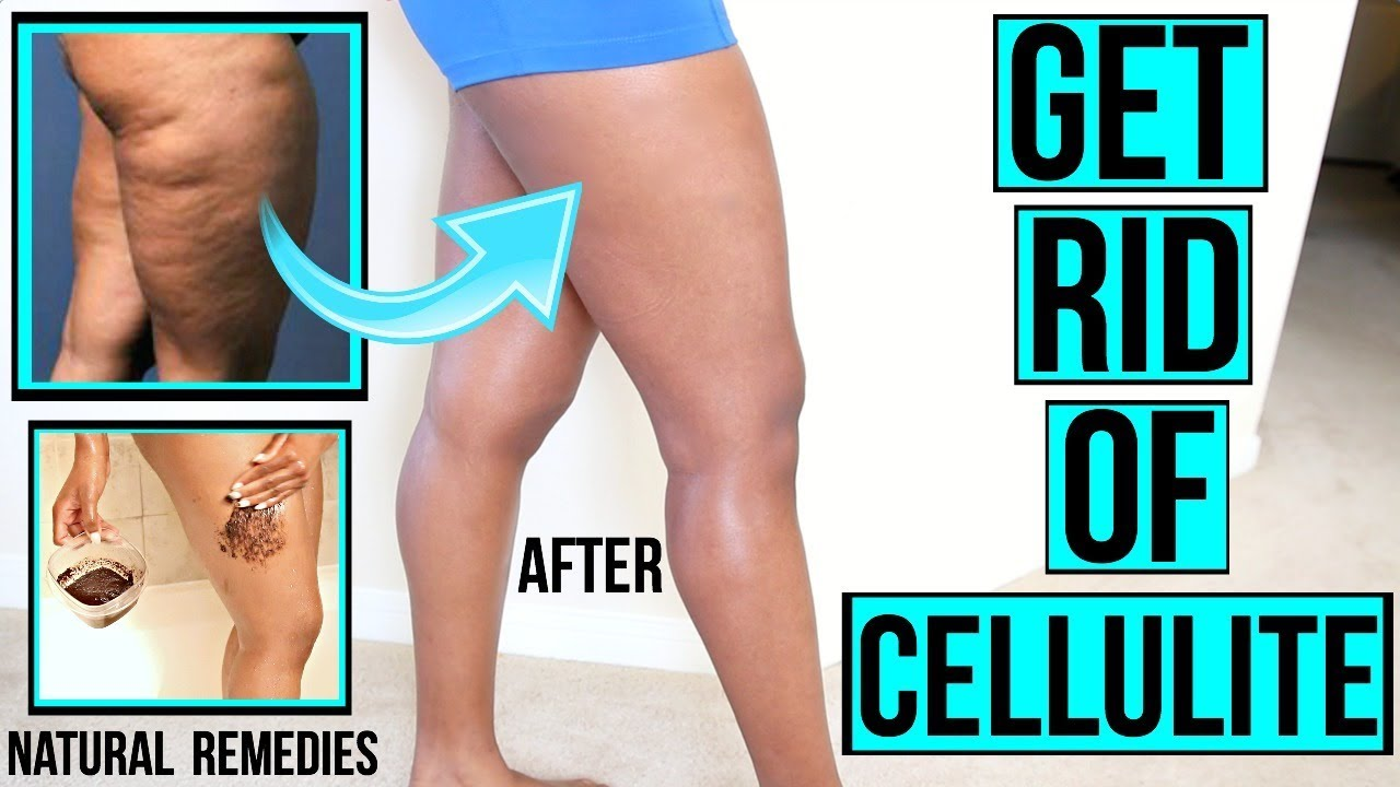 apple cider vinegar and cellulite homemade cellulite scrub