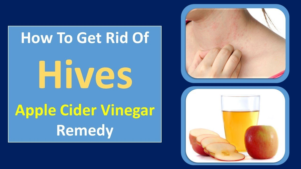apple cider vinegar for hives home remedies for hives turmeric remedy