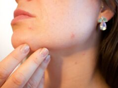Acv for acne e types and treatment